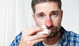 Man with visible signs of flu and a red nose